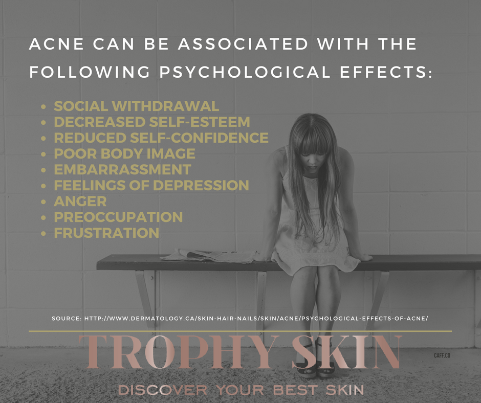 Psychological Effects of Acne