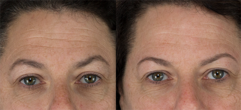 Diminishing fine lines with microdermabrasion