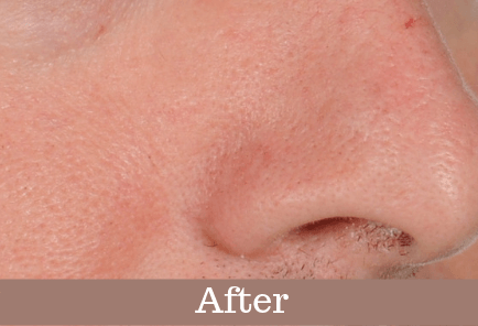 After ultrasonic cleansing. Pores on the nose looks cleaner and the skin looks more radiant.