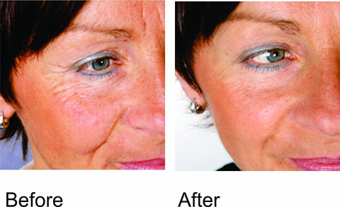 before and after light therapy