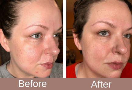 """Absolutely obsessed with my @trophyskin RejuvaliteMD! It has made such a huge difference in my acne and the size of my pores. My skin is practically glowing now!"" -@sylvialovesthemakeup"