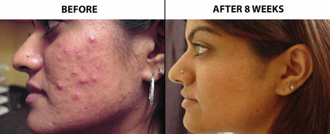 Before and After treatment results using light therapy