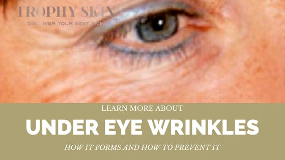 woman with under eye wrinkles