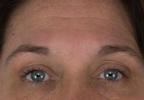 Before and After using Argan Stem Cell Serum along with our Microdermabrasion Machines