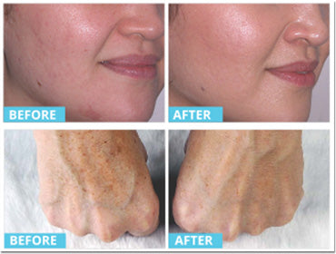Exceptional Before And After Photos Of Using Red Light On Your Skin