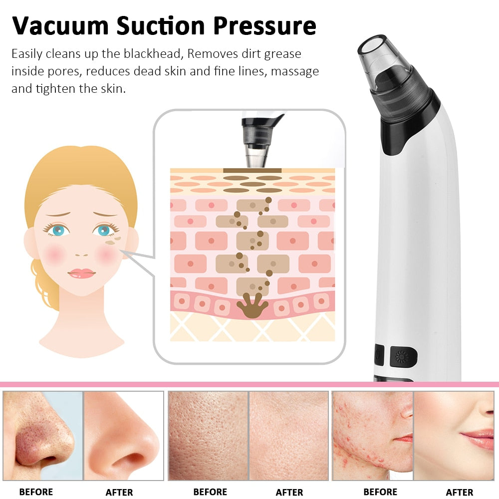 Facial Cleaner Nose Blackhead Remover Deep Pore Acne Pimple Removal Vacuum Suction Diamond Beauty Tool