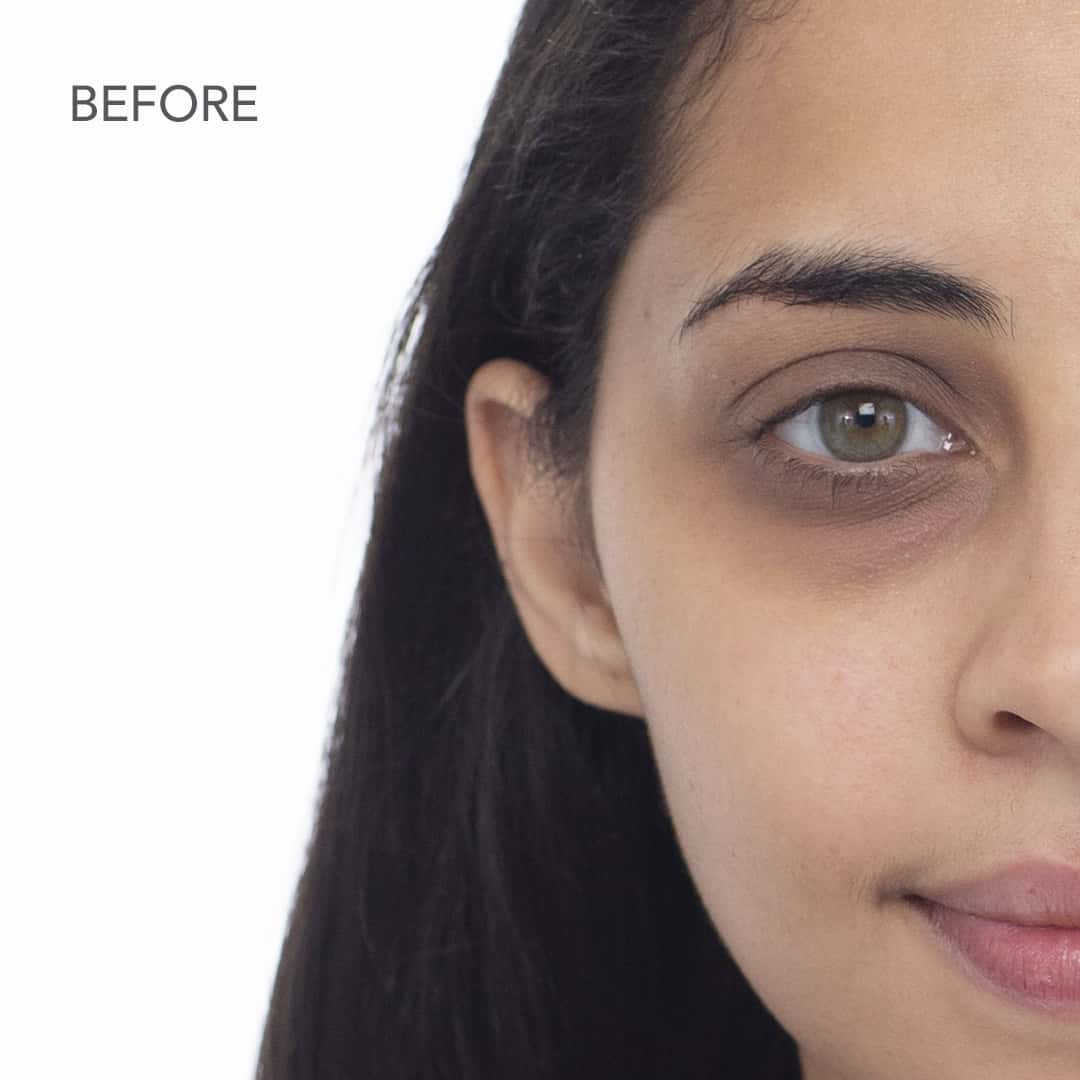before - how to conceal dark circles