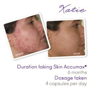 Katie's acne-prone skin before and after accumax