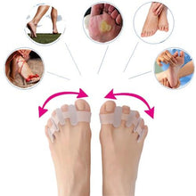 Load image into Gallery viewer, Skywalk™ Orthopedic Bunion Corrector 2.0 - BUY 3 FREE SHIPPING