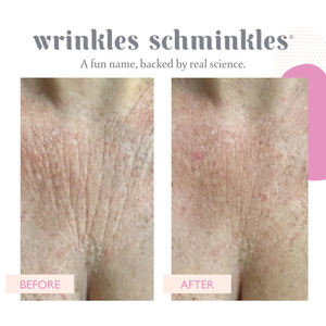 Wrinkles Schminkles - Chest & Décolletage Smoothing Patch