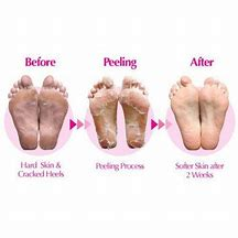 BATHEFEX Softsole Express Exfoliating Foot Peel