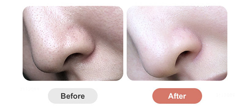 FaceClean™ Blackhead Remover with FREE Gift