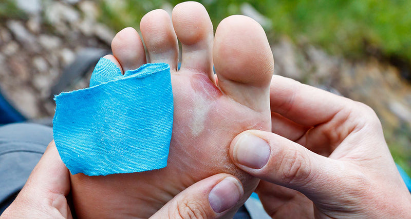 Natural Treatments for Blisters and Itching
