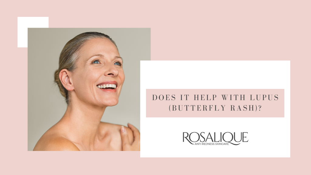 Does Rosalique help with lupus (butterfly rash)?
