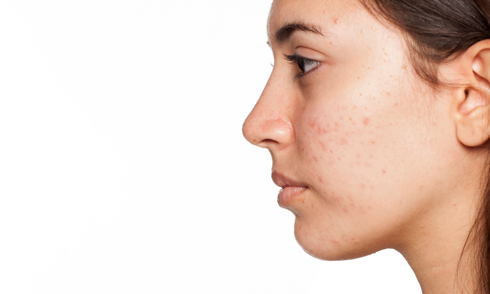 Acne Awareness Month, What Is Acne?