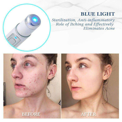 Blue Light Skin Spots Removal Pen