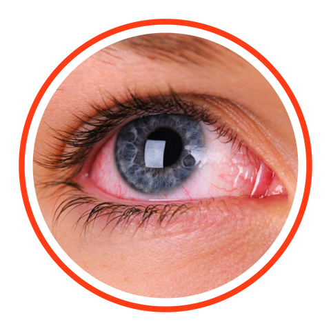 Optical Image Services - Red Eye and Emergency Eye Exams