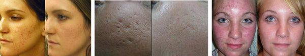 Microneedling acne- arr