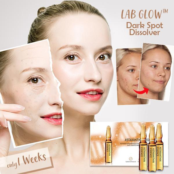 Woman - Lab Glow™ Dark Spot Dissolver