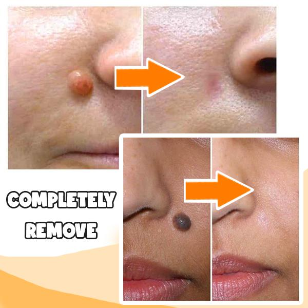 Woman - Skin Tag Remover