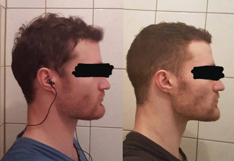 Male face pulling results