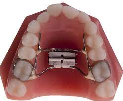 model of a palate expander