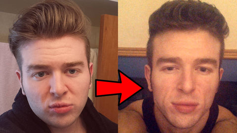 YouTuber Derek's mewing before and after progress photos