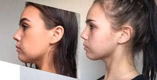 mewing helped define this girl's jawline