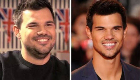 Taylor Lautner's jawline before and after picture shows how important weight loss is