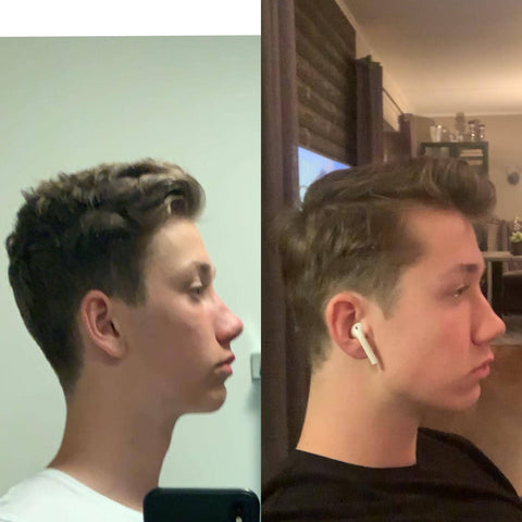 A fast mewing transformation for this teenage boy