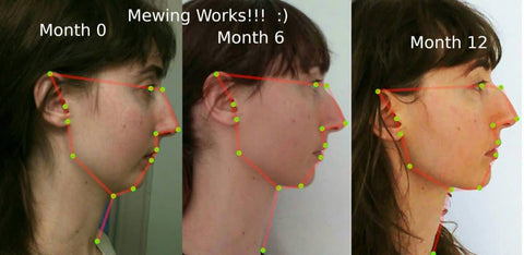 A successful mewing before and after photo collage for this young woman