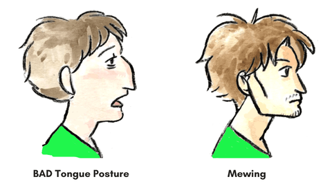 Learn the correct mewing tongue posture