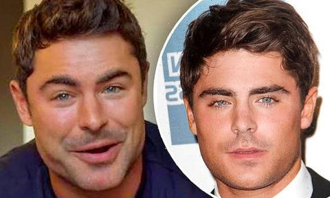 zac efron before and after surgery