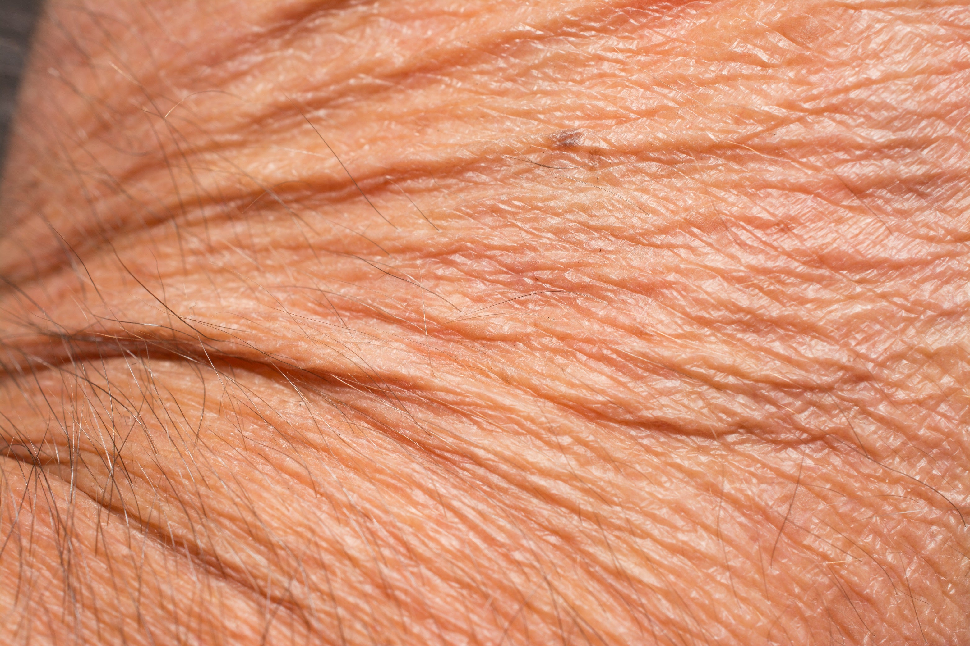 The Worst Things Men Do to Their Skin |Wrinkly Skin