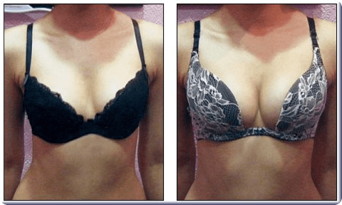 The Secrets Of Getting Bigger Breasts Without Surgery (Avoid Pain And Risk)