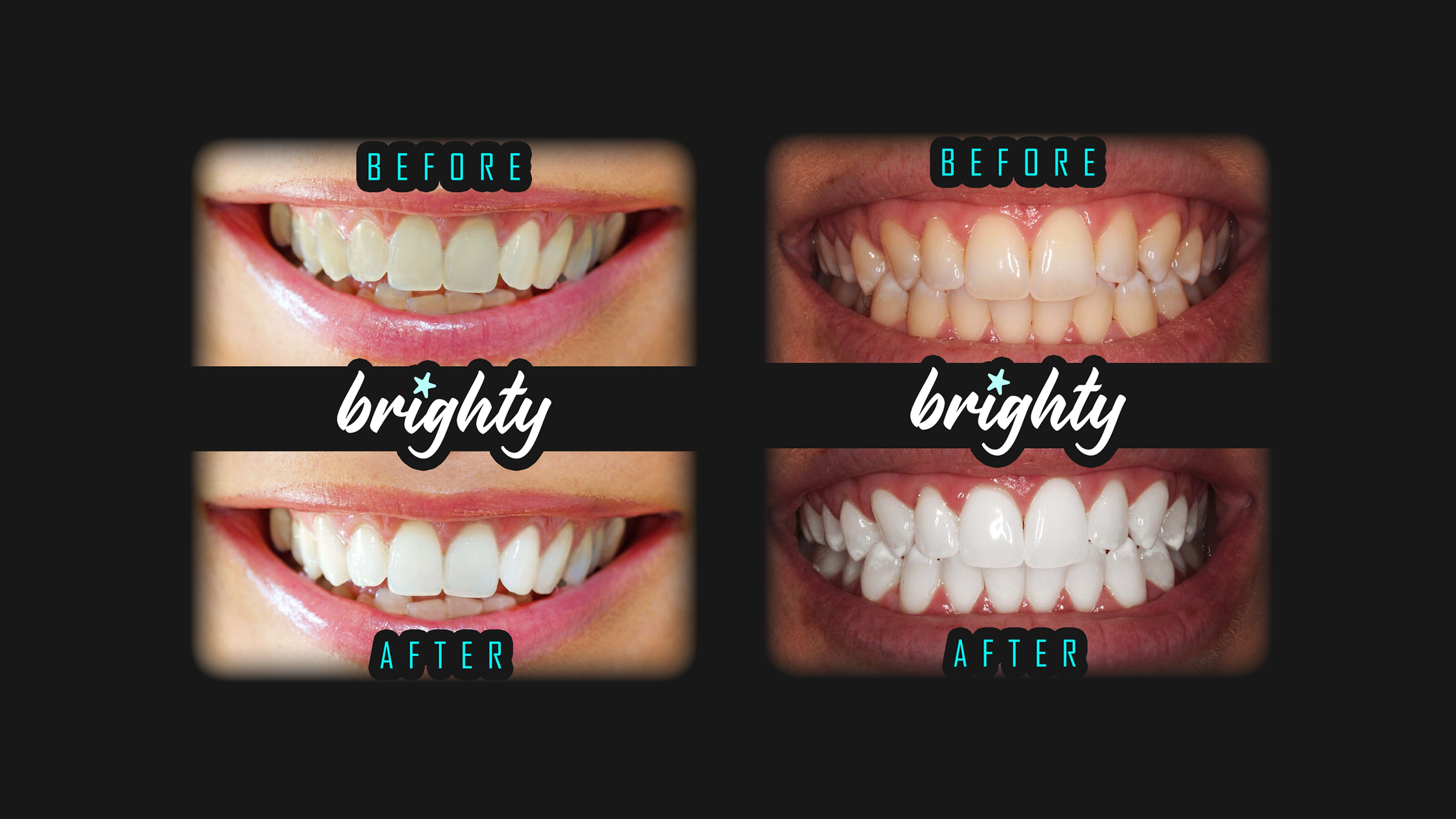 Brighty™ Teeth Whitening | Before & After Examples - Pictures