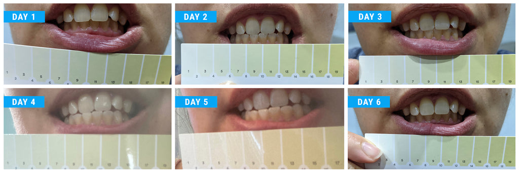 Is the Hismile Teeth Whitening Kit effective?