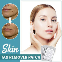 Load image into Gallery viewer, Skin Tag Remover Patch