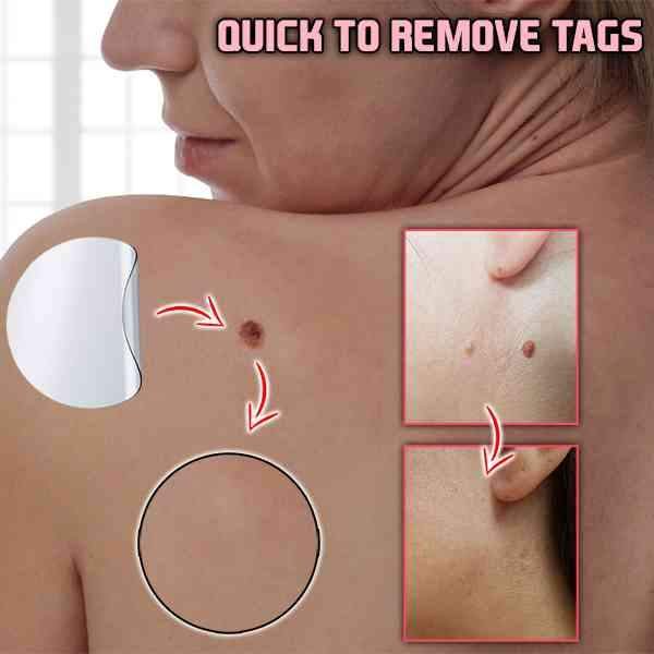 Skin Tag Remover Patch Vicky Plus Store