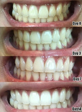 Load image into Gallery viewer, Professional 3D Whitening Teeth Strips