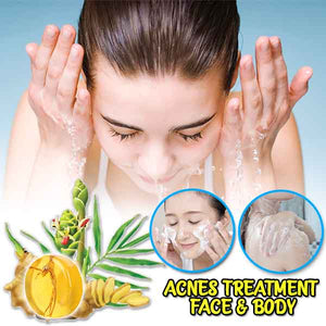 Pimple Back Treatment Ginseng Soap