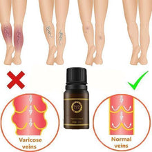 Load image into Gallery viewer, Varicose Vein Ginger Oil