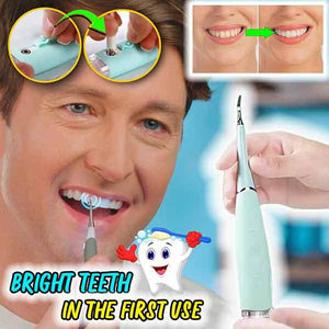BrightBite Ultrasonic Tooth Cleaner