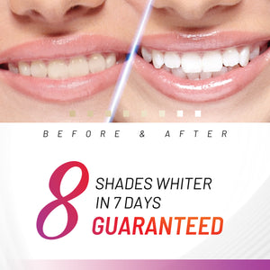 Accelerator Teeth Whitening Kit