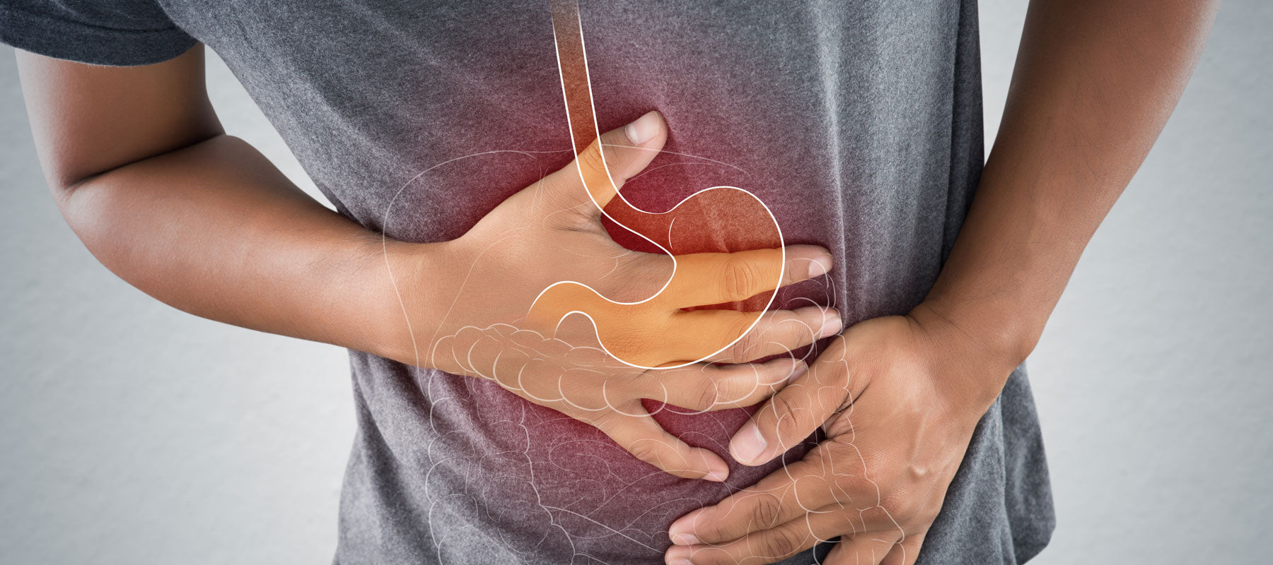 What is Acid Reflux and GERD?