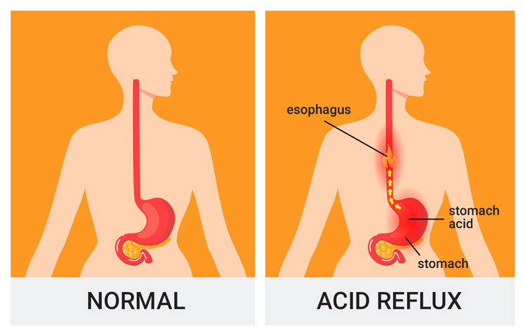 normal and reflux throat infographic