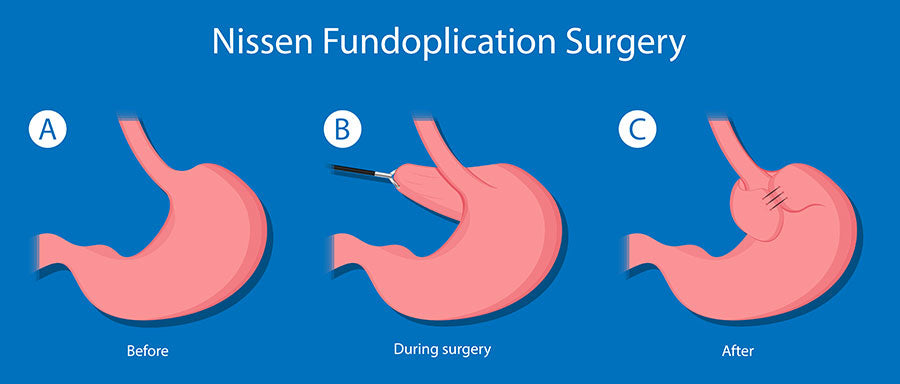 Illustration shows the state of stomach before, during, and after Nissen Fundoplication Surgery