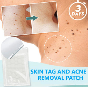 Skin Tag and Acne Removal Patches (36 PCS)