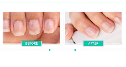 Healthy Nails after using Bellasonic Electric Nail File System