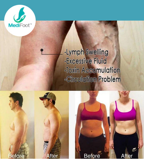 GingerCare™ Lymphatic Drainage Ginger Oil - Medifoot